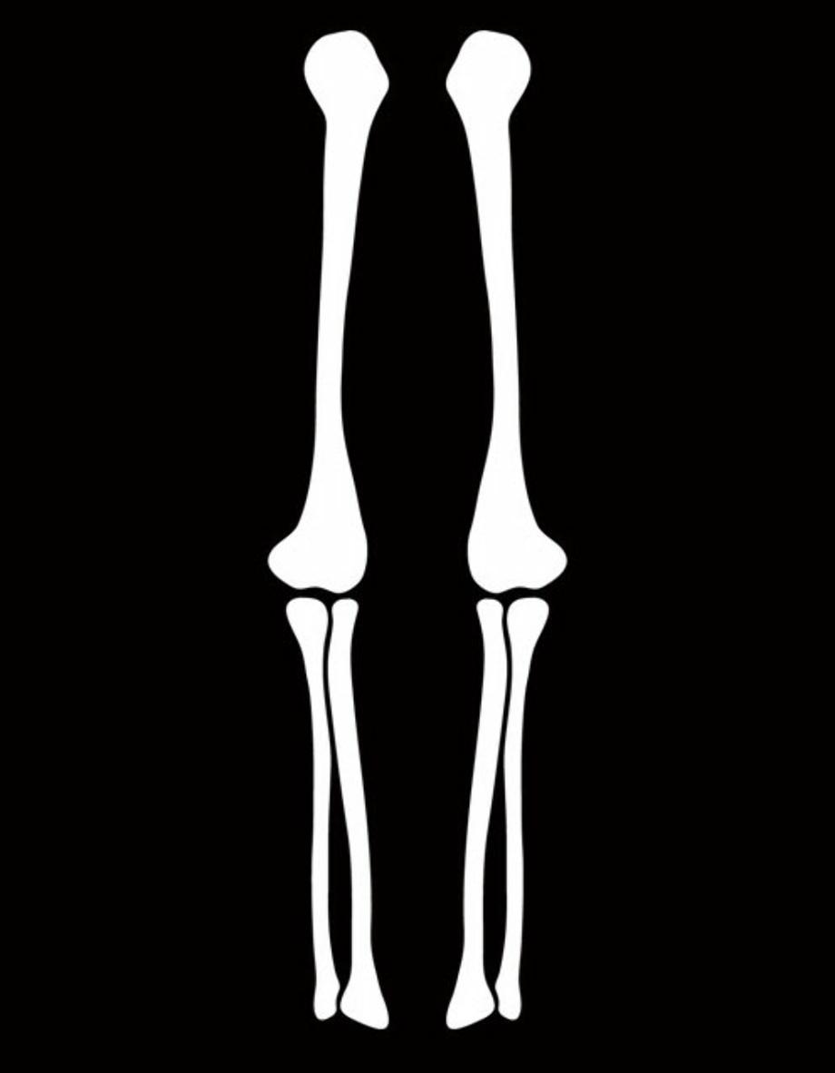 Arm skeleton